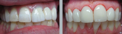 Lumineers Porcelain Veneers
