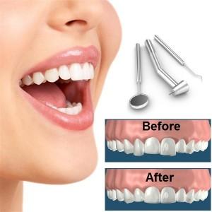 Dental-Reshaping