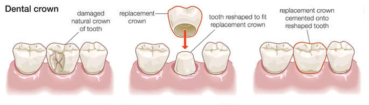 Cosmetic Dentistry Explained Philadelphia Dentistry