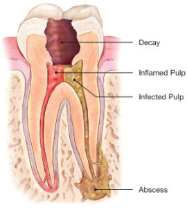 root-canal-abcessed-tooth